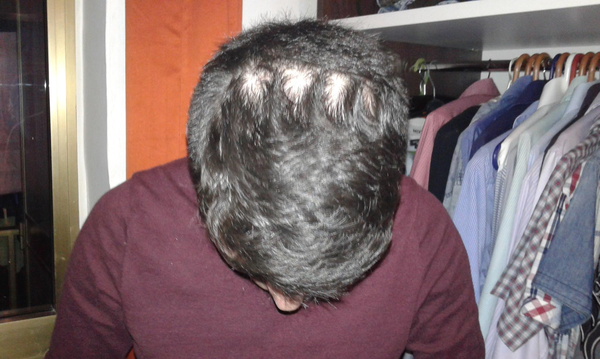 Hair-loss caused by a Razer Tiamat headset